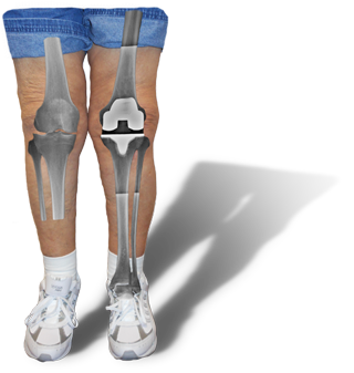 image of legs with knee arthritis on the left and knee replacement on the right