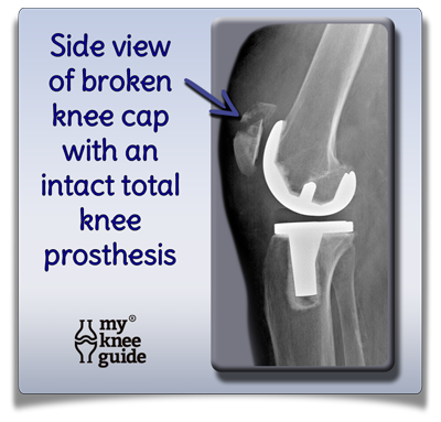 Broken Knee Cap around knee replacement prosthesis