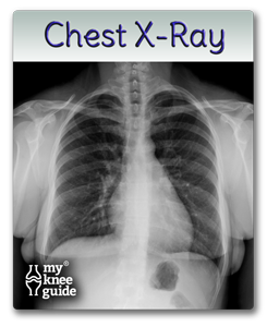 Chest xray for pre-op exam
