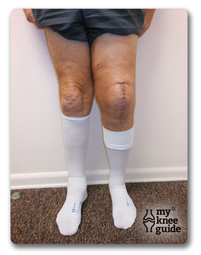 compression stocking to reduce swelling after TKR surgery