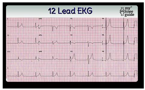 EKG for pre-op exam