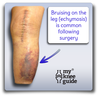 Bruising of skin after knee replacement