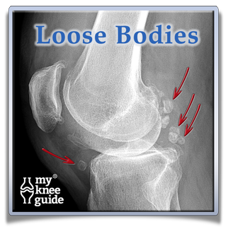Knee arthritis with loose bodies