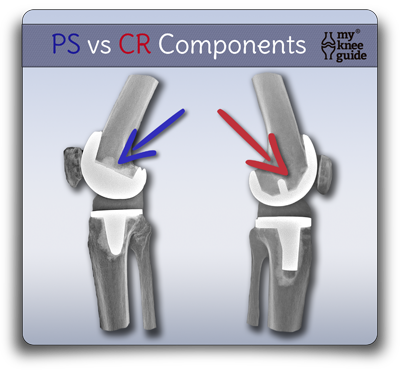 difference between knee prosthesis components