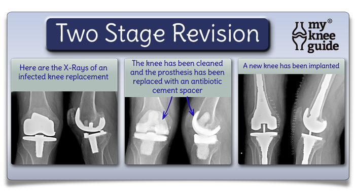 two stage revision total knee arthroplasty following infection
