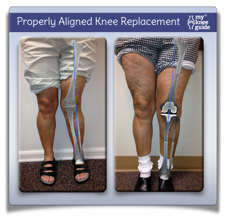 Properly_aligned_knee_replacement