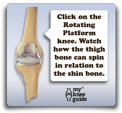 The Knee Prosthesis: The different types