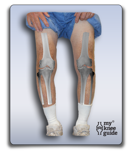 Bilateral knee arthritis