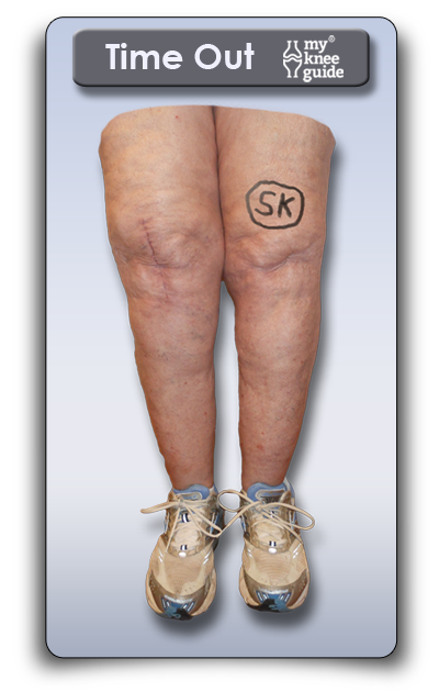 Time Out site marking on knee by surgeon