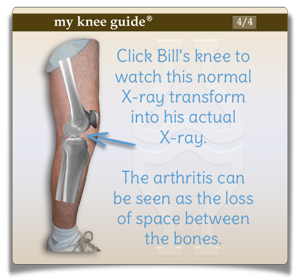 Click on Bill's knee to watch this normal xray transform into his actual xray