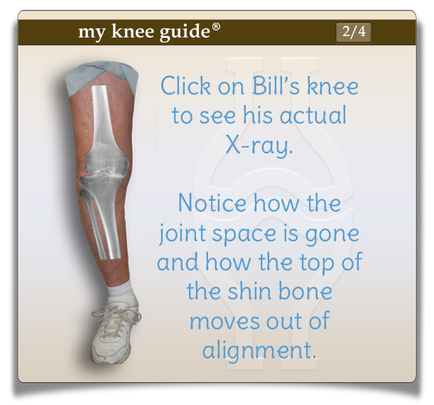 Bill's knee with arthritis xray and bow leg deformity