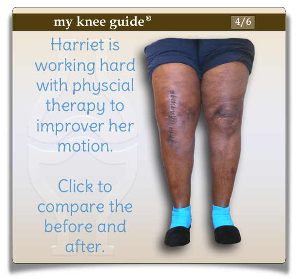 Click on Harriet's knee to compare the pictures of before and after knee replacement. - My Knee Guide X-ray Vision Center