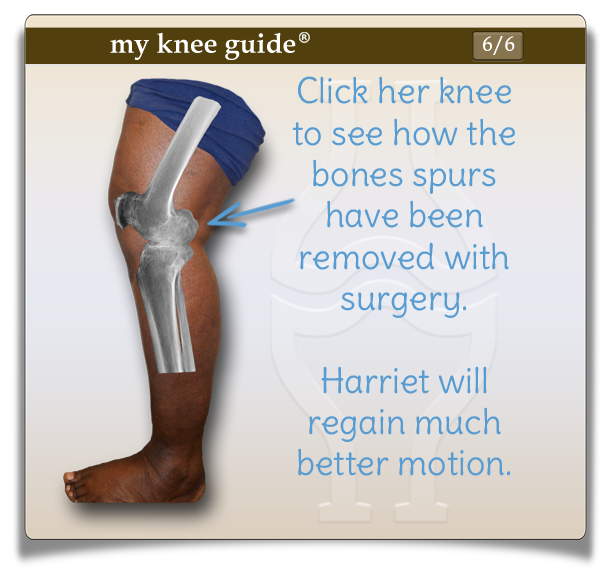 Click Harriet's knee to see how the bone spurs have been removed with surgery. - My Knee Guide X-ray Vision Center
