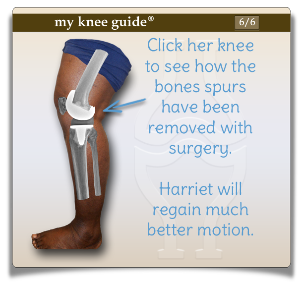 Side view of Harriet's knee showing how the bone spurs have been removed with surgery and knee replacement components are in place. - My Knee Guide X-ray Vision Center