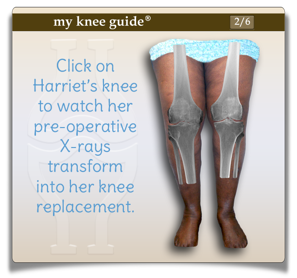 Harriet's knee with x-rays showing her arthritis. - My Knee Guide X-ray Vision Center