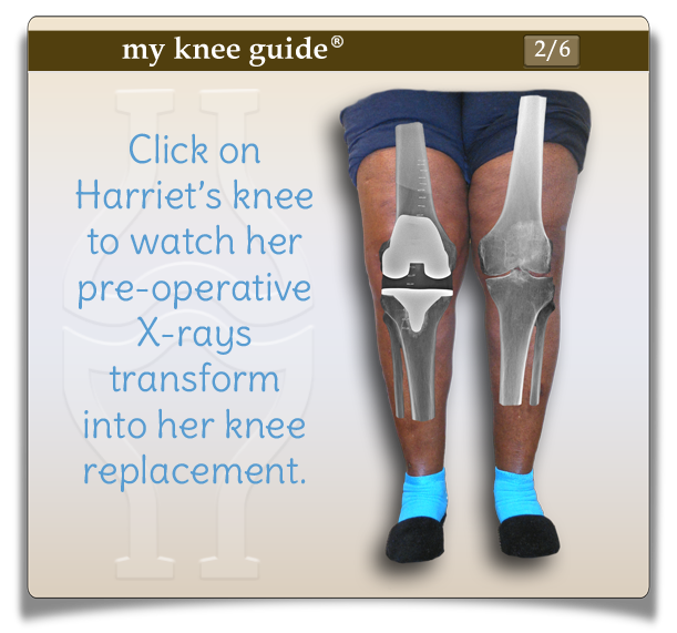 Harriet's knees showing her postoperative xrays transform next to her xrays of severe knee arthritis. - My Knee Guide X-ray Vision Center