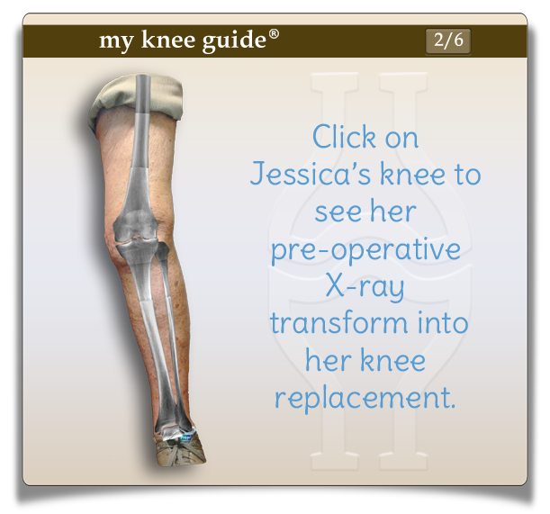 Jessica's leg with x-ray is applied. Notice the severe arthritis on the outside of the knee leading to a knock knee (valgus) deformity.