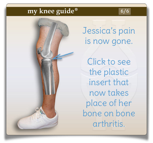 Jessica's side view of knee showing her arthritis and bone on bone contact