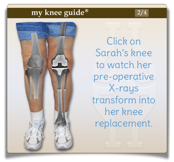 machine used after knee surgery